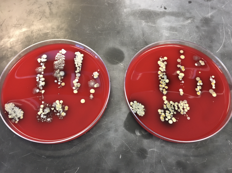 Reporter Jill Sheridan participated in the experiment. The petri dish on the left is her before, and the dish on the right is her after. (Photo courtesy IU Health pathology lab)