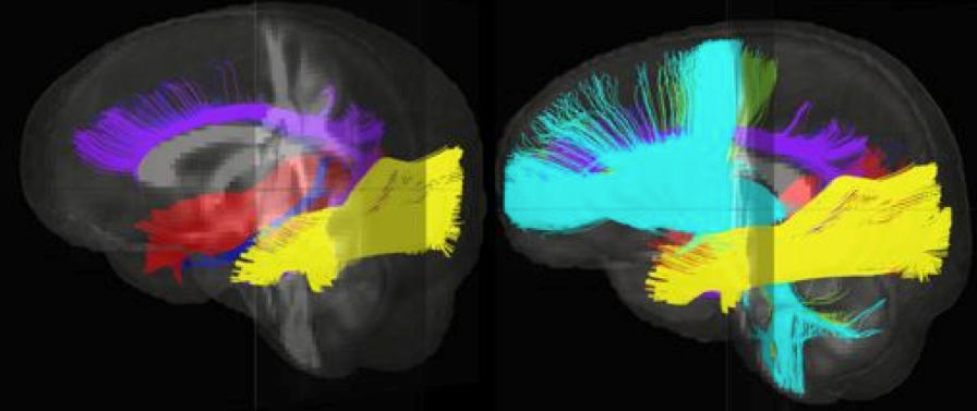 What Poverty Does To Young Brain >> Poverty S Toll On Young Brains Academic Achievement Gap Wuwm